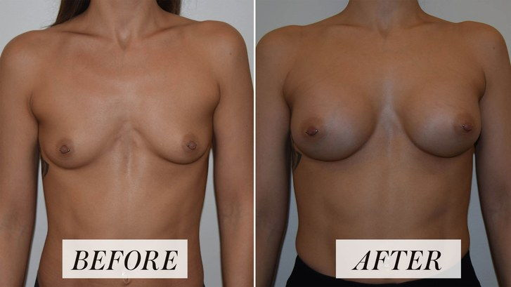 Femeie's before-and-after photos of breast augmentation procedure