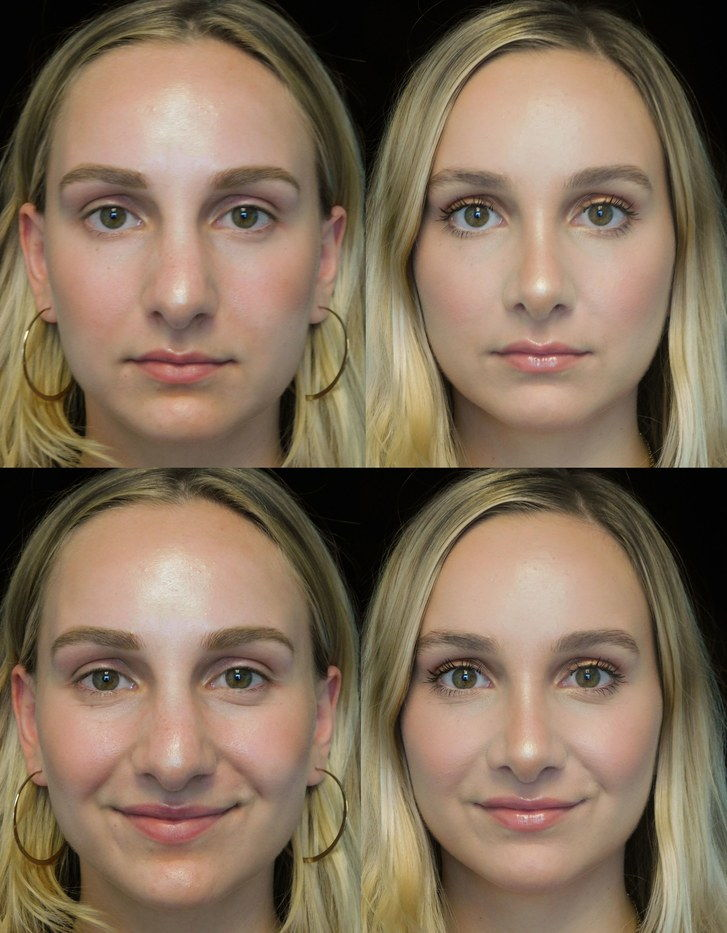 Пре и после photos of scarless rhinoplasty patient